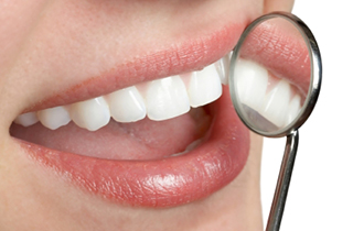 cost of teeth whitening