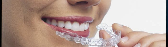 invisalign system treatment